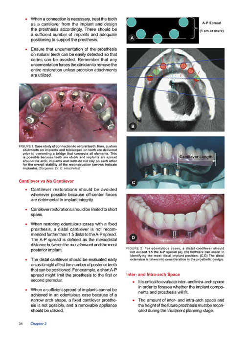 What Is A Dental Implant Manual Guide
